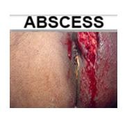 Anal abscess or hemorrhoid